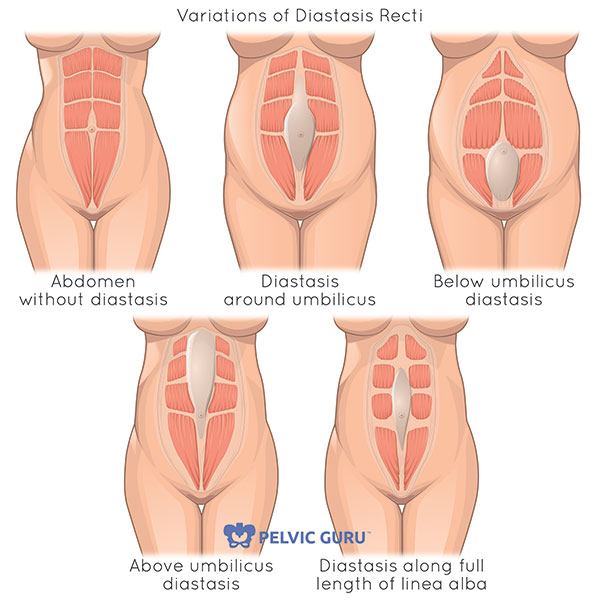 Illustration of four different types of diastasis